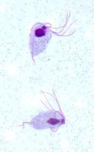 Trichomonas gallinae
